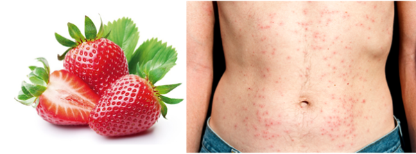alergija na jagode simptomi