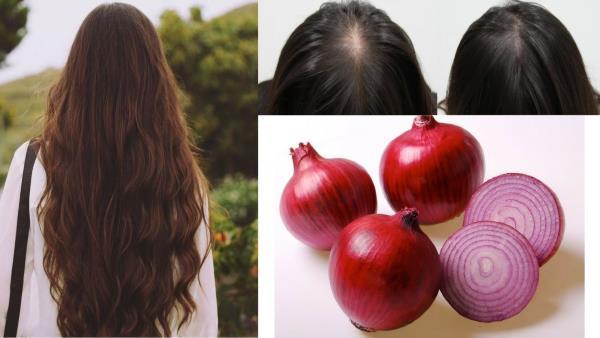 crni luk za rast kose