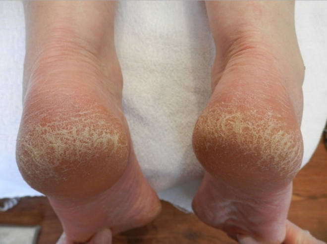 salicilna kiselina za stopala
