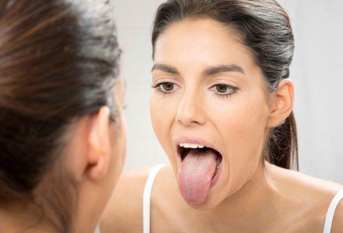 suva usta